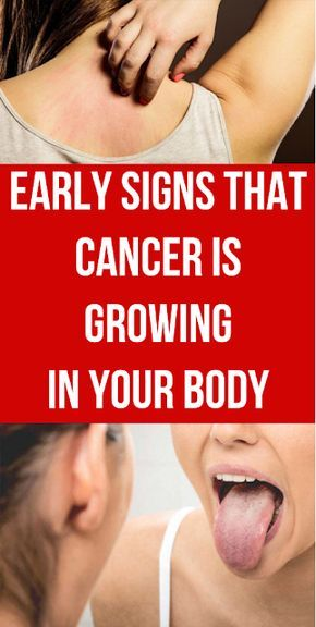 Early Signs That Cancer Is Growing In Your Body