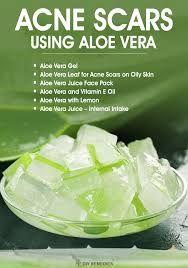 Aloe Vera For Acne: 9 Ways To Use Aloe Vera For Pimples
