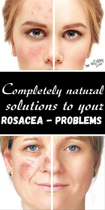 Completely natural solutions to your Rosacea-problems