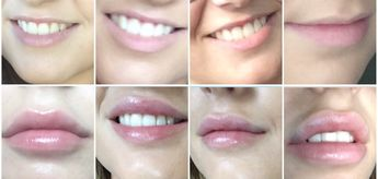 List of attractive augmentation lip permanent ideas and