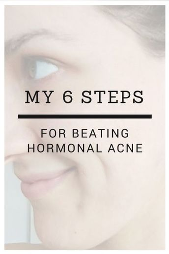 clear skin during period #acne #work #remedies #quick #treatment #instant #homemade #that