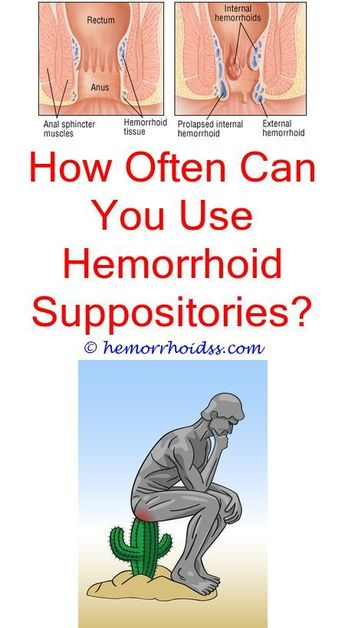 What You Should Know About Your Hemorrhoids