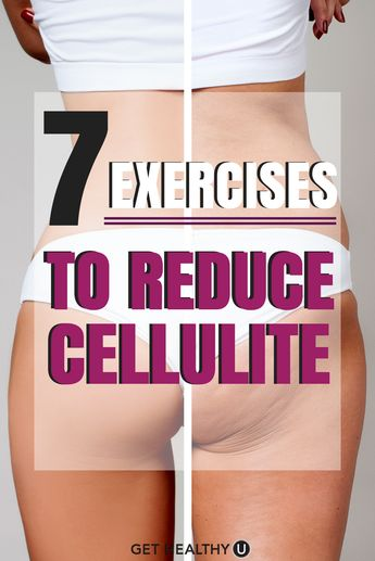 7 Best Exercises to Reduce Cellulite