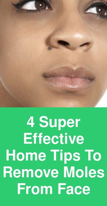 4 Super-effective home tips to remove moles from face