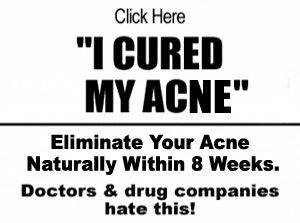 article 22 Home Remedies for Acne & Pesky Pimples