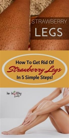 How to Finally Get Rid of Strawberry Legs | 3 Simple Steps To Soft And Beautiful Skin | AVNI #clearskin #strawberryskin #beautifulskin