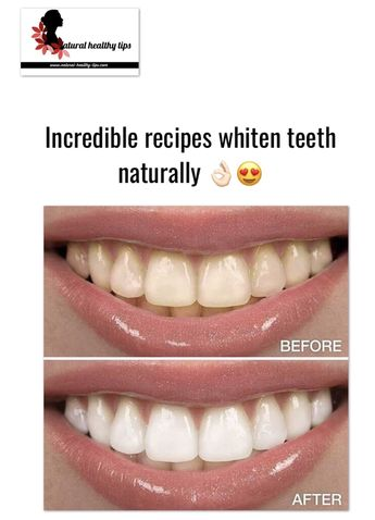 Whiten teeth: Most effective natural remedies