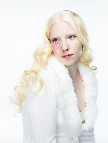 portraits focusing on people with Type 1 albinism...beautiful!