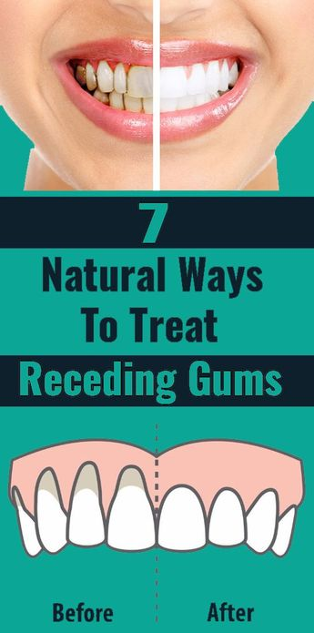 7 Natural Ways To Treat Receding Gums The beauty of one's face is his/her smile which is further enhanced by the set of teeth one possesses. However, a very unfortunate situation is the problem of gum recession. This occurs when there is a display of excessive teeth root due to the decline of gum which surrounds the teeth. #gums #naturalways #homeremedies #naturalhairlossremedy