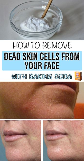 How to remove dead skin cells from your face with baking soda