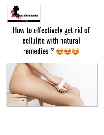 Cellulite: Numerous remedies to remove it fast