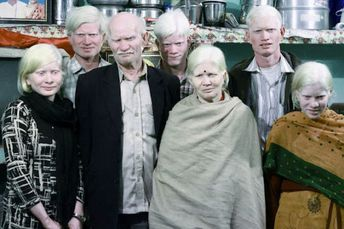 The Largest Albino Family in the World  (17 pics)