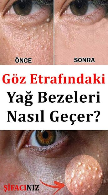 Göz Etrafındaki Yağ Bezeleri Neden Olur Yağ Bezeleri Nasıl Geçer?