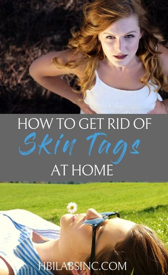 How to Get Rid of Skin Tags at Home