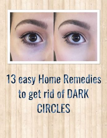 How to remove dark circles with natural remedies