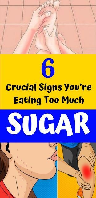 6 Important Signs You're Consuming Too Much Sugar