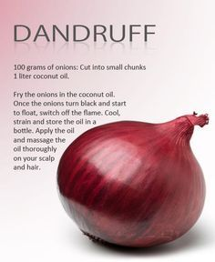 10 Home Remedies To Get Rid Of Dandruff
