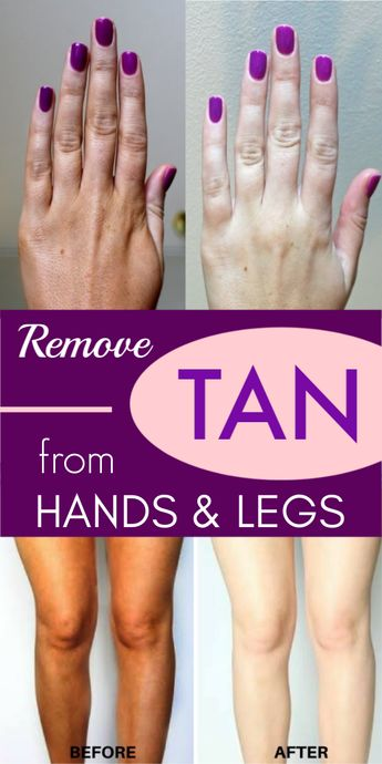 100% effective method that will remove tan from your hands and feet instantly