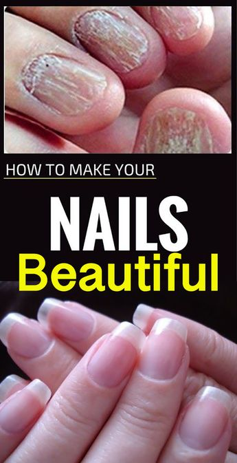 Nail Treatment Oil - Fungus Removal Essence