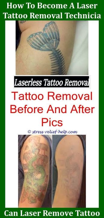 Tattoo Paper How To Know If Tattoo Removal Is Infected I