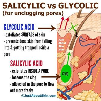 Glycolic acid treats sun damage, hyperpigmentation, wrinkles. Salicylic acid helps control oil production, breakouts and acne bacteria. #SkinCareForSunDamage