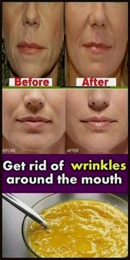 Working hard to hide those wrinkles around the neck? Here are some of the popular natural options on how to get rid of neck wrinkles.