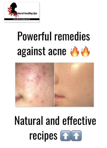 4 Powerful home remedies for acne