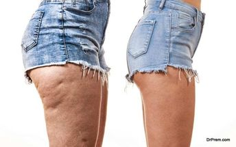 Completely natural ways of getting rid of cellulite