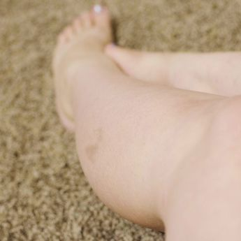 How to Get Rid of Age Spots on the Legs