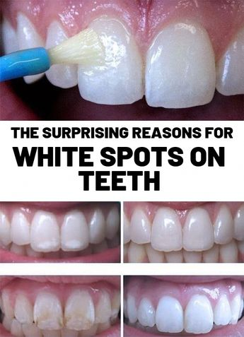 White spots on teeth cause lots of people to be self conscious in their smile. Of course, having shiny white teeth is just a sign of good oral hygiene and dental care. Because they may on occasion be the first sign of tooth decay but white stains on teeth shouldn't be ignored. However white blotches or patches under the tooth enamel that appear whiter aren't always a sign that tooth decay is still happening.