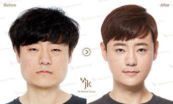Jk Plastic Surgery In South Korea Korean Best Extreme
