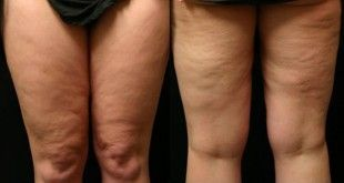 How to Get Rid of Cellulite on Legs?