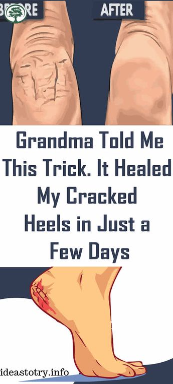 Grandma Told Me This Trick. It Healed My Cracked Heels In Just A Few Days !