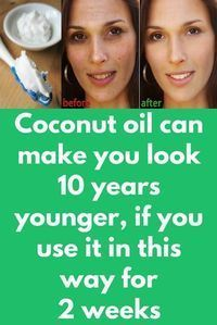 Coconut oil can make you look 10 years younger, if you use it in this way for 2 weeks