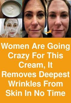 Women are going crazy for this cream, It removes deepest wrinkles from skin in no time