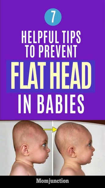 7 Helpful Tips To Prevent Flat Head In Babies : Every part of the body is so adorably perfect. Wait! What about the head? Is it round or flat? A flat head is common in newborns. #newborn #babies #babyhealth #flatheadbabies