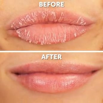 Signs and symptoms of angular cheilitis will virtually show up at the edges of the mouth. Discover more regarding cracks corners of mouth diagnosis and also its therapies. #angularcheilitisremedy
