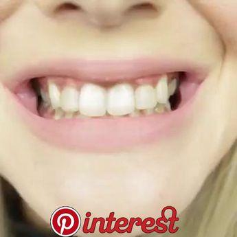 Kleine Leute wissen, aber das lässt Ihre Zähne 100x weißer!