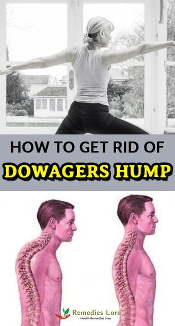 How to Get Rid of Dowagers Hump