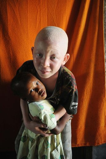 6 years old, Ari Tamimu Rikele and his little cousin Aziza, left their birthplace Kilwa 300 km south of Dar El Salam, together with their half-albino, half-colored family, due to the social stigma. Superstitions are less in Dar Es Salam, but poverty and skin problems exhaust them © Maro Kouri