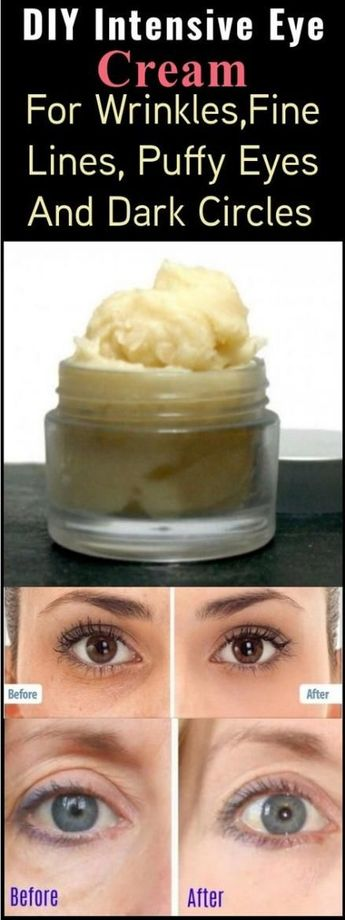 Makeup tips for dark circles sleep 55 Ideas for 2019