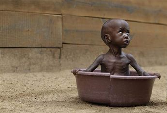 Aden Salaad, 2, looks up at his mother as she bathes him in a tub at a Doctors Without Borders hospital, where Aden is receiving treatment for malnutrition, in Dagahaley Camp, outside Dadaab, Kenya, on Monday, July 11. (Rebecca Blackwell / AP)