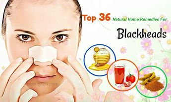 Do You Want To Remove Blackheads On Your Face & Nose? A Must-Read Article!