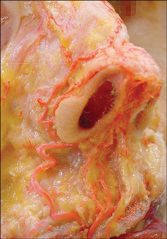Figure 7. Alar valve and marginal alar arcades, showing the nostril circle. From a lateral basal view, this dissection demonstrates nasal anastomoses among the marginal nasal, rim, and columellar (branch of the superior labial and subnasal arteries) arteries, creating arcades at the level of the nostril rim and lower lateral cartilage caudal margin.