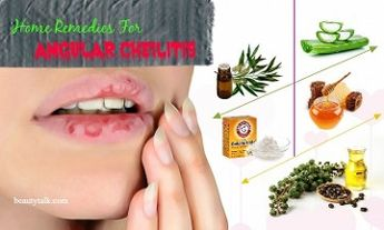 10 Proven Natural Home Remedies For Angular Cheilitis Infection