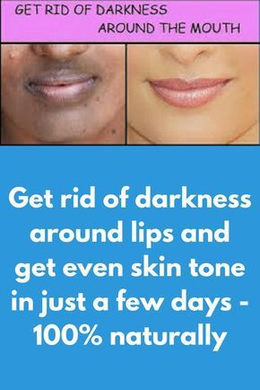 Get rid of darkness around lips and get even skin tone in just a few day - 100% naturally
