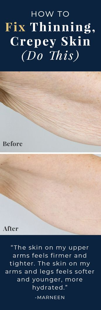 Tried & Tested | Here's the Only Solution Recommend by Beauty Industry Experts to Fix Thinning, Crepey skin! [See Review]