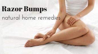 Natural Remedies to Treat Razor Bumps at Home