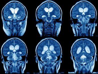 不平不満を言いまくると「脳が物理的に変わる」と科学的に判明