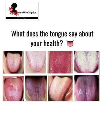 What does the tongue say about your health